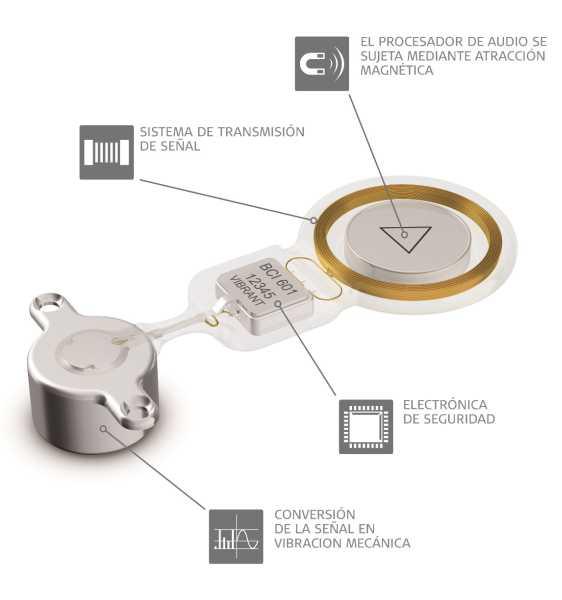 MED-EL presentó en Argentina Bonebridge, el primer sistema de implante activo de conducción ósea del mundo